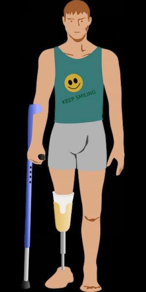 9-protesi-ortopedica.jpg